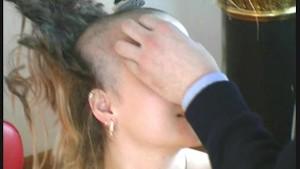 Petra Model loosing hair