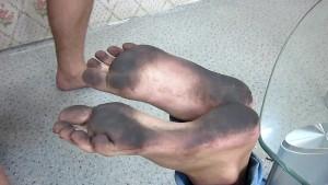 Bastinado Dirty Feet